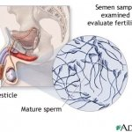 Male, Female and other infertility causes