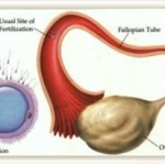Tubal Infertility